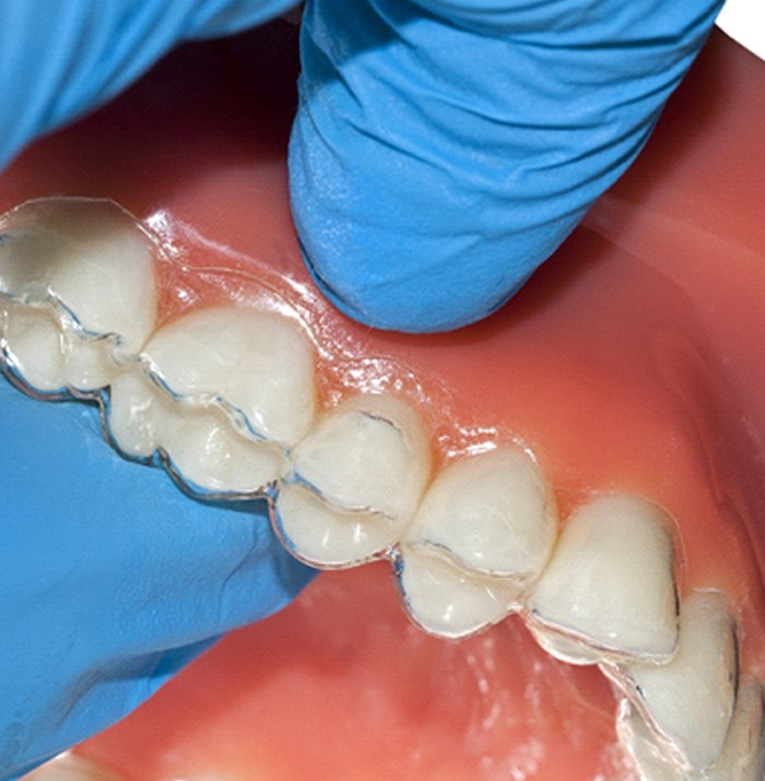 Clear aligner on dental mold.