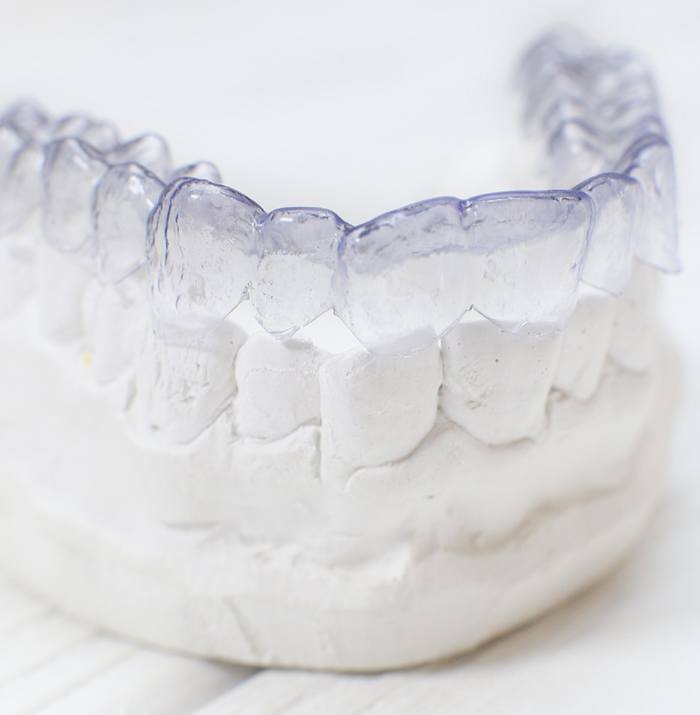 Clear aligner for Invisalign on a dental mold.