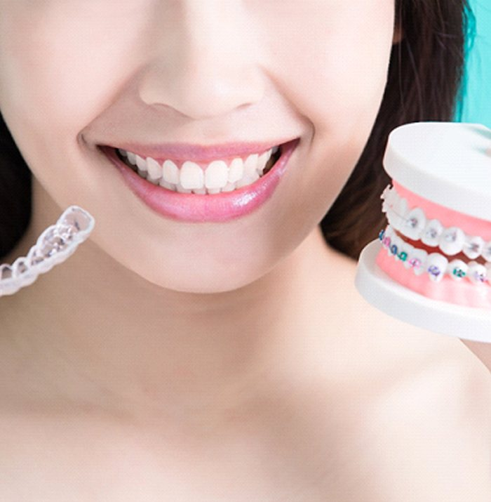 Woman holding Invisalign aligner and traditional braces model