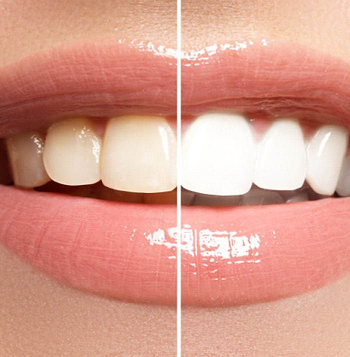 A before and after image of a person's smile after undergoing at-home teeth whitening