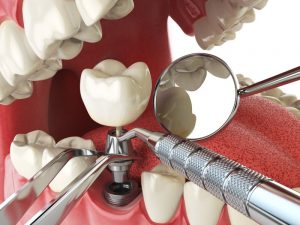 implant dental tools open mouth